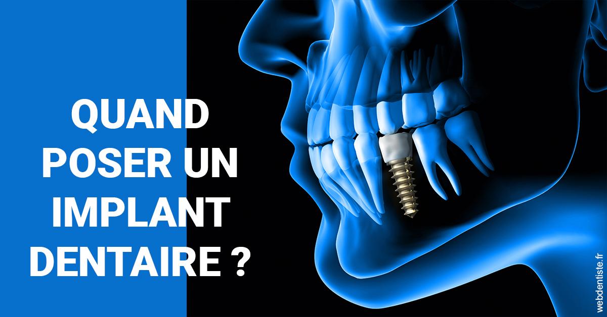 https://selarl-heraud.chirurgiens-dentistes.fr/Les implants 1
